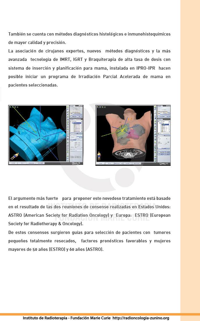 APBI - También se cuenta con métodos diagnósticos  histológicos e inmunohistoquímicos de mayor calidad y precisión.  La asociación de cirujanos expertos, nuevos   métodos diagnósticos y la más avanzada  tecnología de IMRT, IGRT y  Braquiterapia de alta tasa de dosis con sistema de inserción y planificación  para mama, instalada en IPRO-IPR  hacen posible iniciar un programa de Irradiación  Parcial Acelerada de mama en pacientes seleccionadas.  El argumento más  fuerte para  proponer este novedoso tratamiento está basado en el resultado  de las dos reuniones de consenso realizadas en Estados Unidos:  ASTRO (American  Society for Radiation Oncology) y  Europa:  ESTRO (European Society for  Radiotherapy & Oncology).  De estos consensos surgieron guías para  selección de pacientes con  tumores pequeños totalmente resecados,  factores  pronósticos favorables y mujeres  mayores de 50 años.
