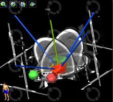 Foto Fig. 14: Reconstrucción 3D del volumen e incidencia de normal