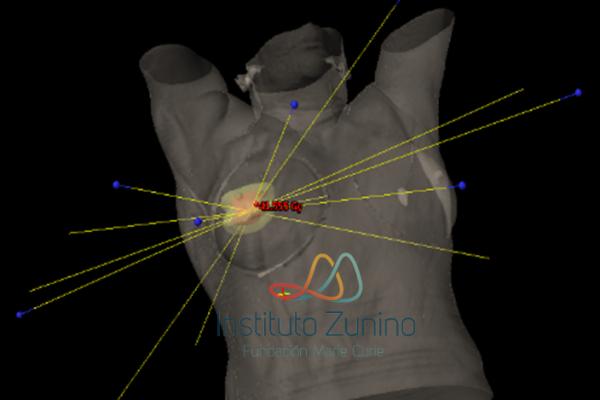 APBI (Irradiación parcial acelerada de Mama)
